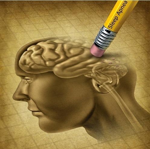 Niedotlenienie mózgu